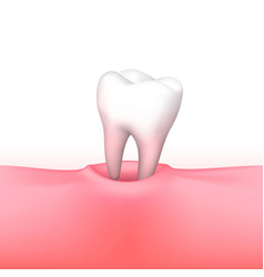 tooth loss on white background vector image
