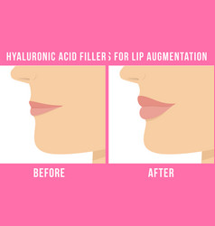 lip augmentation effects vector image