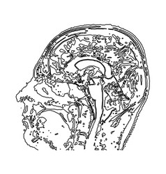 Topographic map mri of the human brain vector