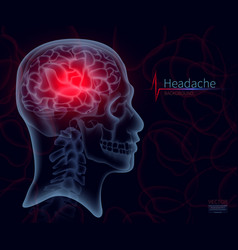headache x-ray brain for medicine skull vector image