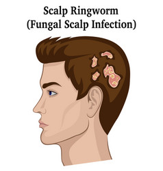 Scalp ringworm vector