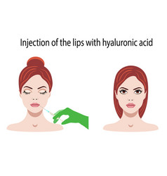with hyaluronic acid for lips vector image