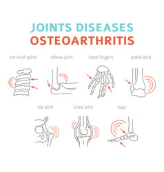 Joints diseases arthritis osteoarthritis symptoms vector