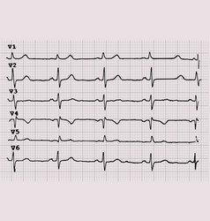 Cardiogram heartbeat the graph on graph paper vector