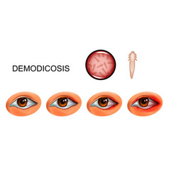 Demodecosis tick demodex on eyelashes vector