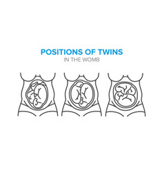 Position of twins in the womb vector