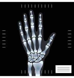 X-ray hand vector