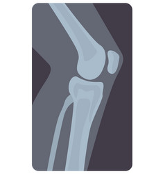 Lateral radiograph human knee joint monochrome vector