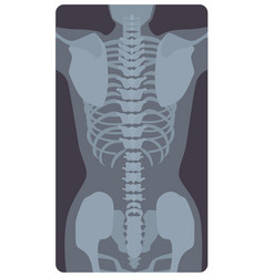 Anterior radiograph of human rib cage and pelvis vector