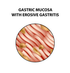 Mucous stomach with erosive gastritis vector