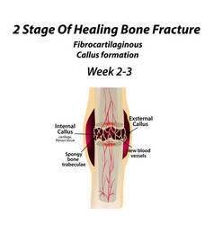 2 stage healing bone fracture formation of vector