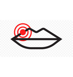 lips herpes cold sore inflammation icon labial vector image