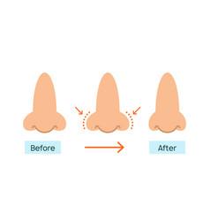 Rhinoplasty nose plastic surgery icon vector