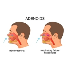 Adenoiditis respiratory failure vector