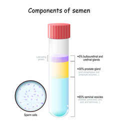 Semen components test tube with sperm cells vector