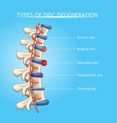Intervertebral disc degeneration types vector