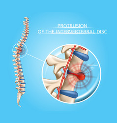 Human spine disease anatomical infographic vector