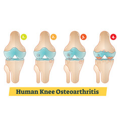 Human knee osteoarthritis diagram vector