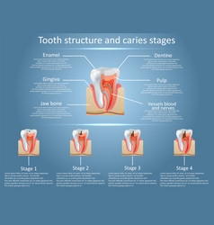 Tooth structure diagram and dental caries vector