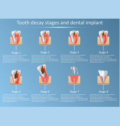 Tooth decay stages and dental implant vector