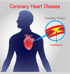 Coronary heart disease logo icon vector