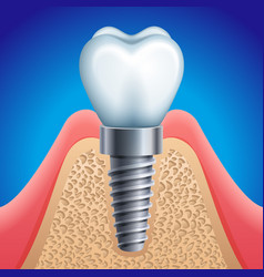 dental implant icon vector image