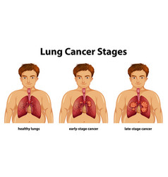 Informative lung cancer stages vector