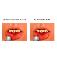 Candidiasis and aphthous stomatitis vector