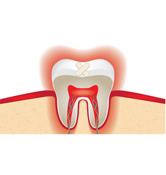 Crop of molar tooth adhesive plaster vector