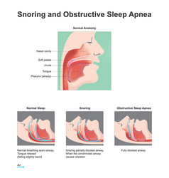 Snoring and obstructive sleep apnea vector