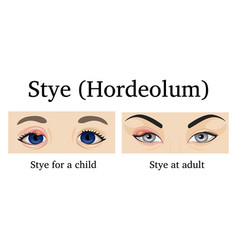 Stye vector