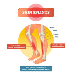 shin splints leg muscle pain vector image