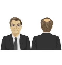 sad mature businessman with bald problem vector image