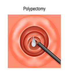 colorectal polyp and polypectomy vector image