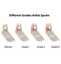Different grades of ankle sprains1 vector image vector image