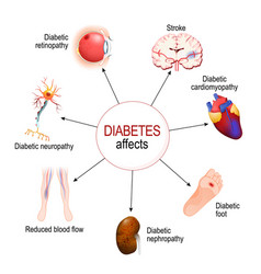 Diabetes affects complications of diabetes vector