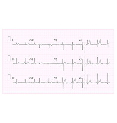heart cardiogram chart of vector image vector image