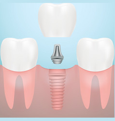 human teeth and dental implant isolated on a vector image