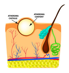 Atheroma structure the structure of moles on the vector