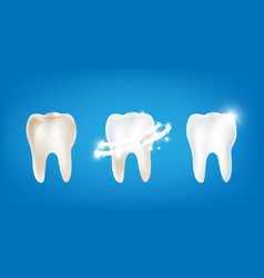 Collection of dirty clean and strong white tooth vector