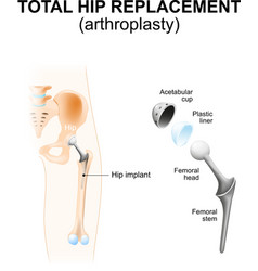 Total hip replacement vector image