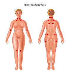 Fibromyalgia tender points vector