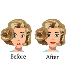 acne treatment before after vector image