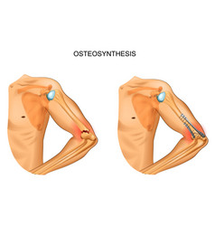 Osteosynthesis in fracture of distal humerus vector