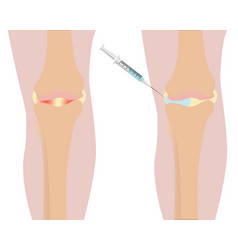 knee injection inflamation vector image