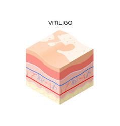Vitiligo skin cross-section human skin layers vector