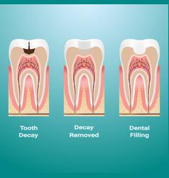 Treatment caries dental filling dental caries vector