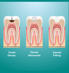 Treatment of caries dental filling dental caries vector