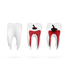 Stages caries development isolated on white vector