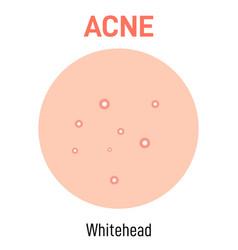 Whitehead skin acne type vector